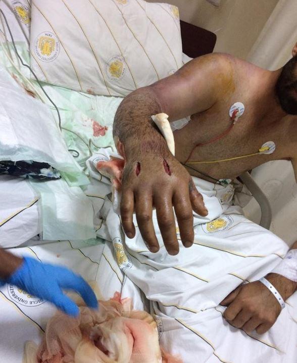 İlan yaşlı kişini komaya saldı - FOTO