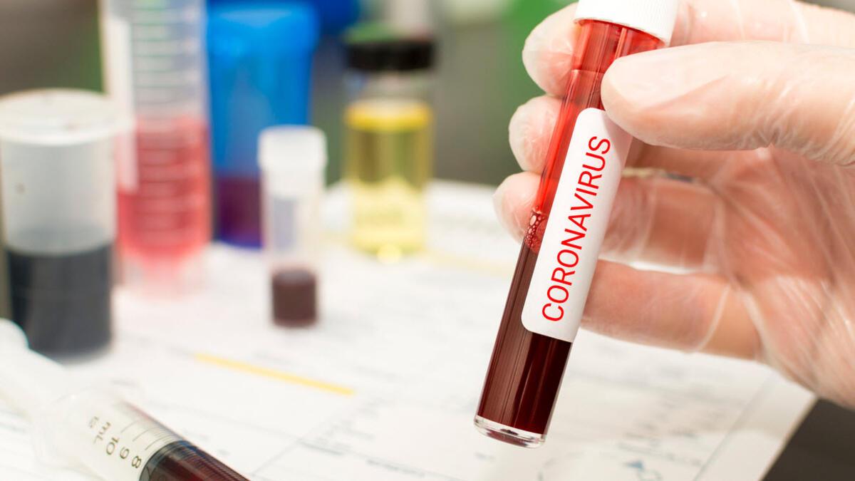 Koronavirusu zərərsizləşdirən anticisimlər aşkarlandı
