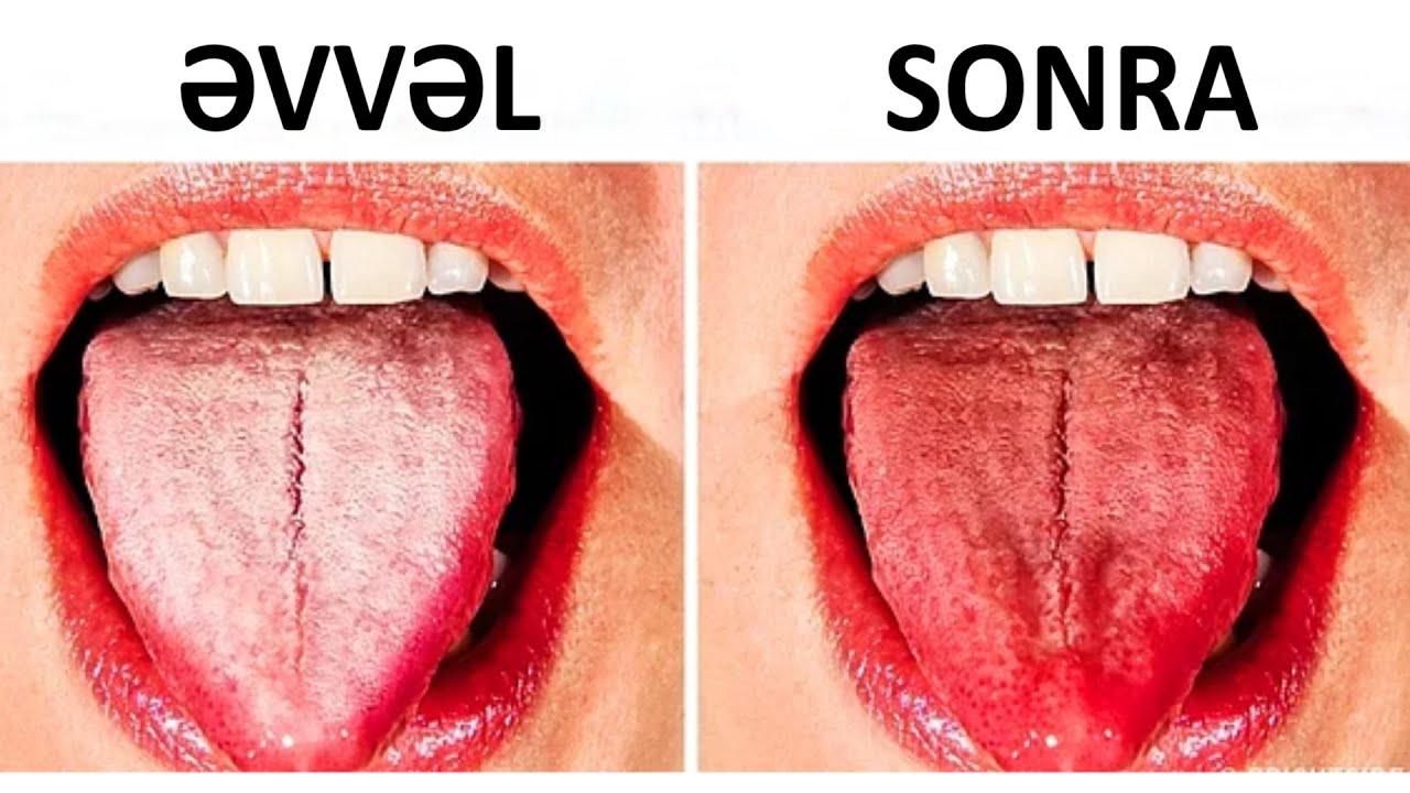 Şok: Dilinizin rəngi bu xəstəliyi göstərir  VİDEO