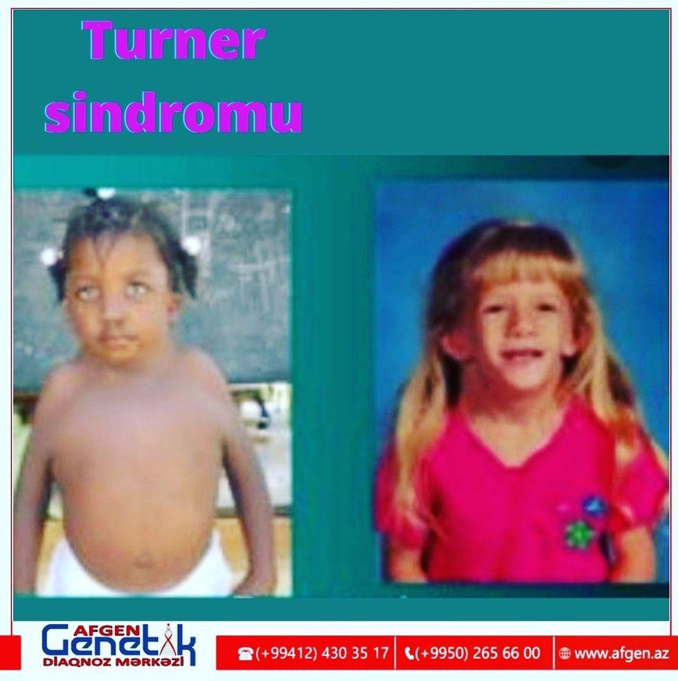 Təkcə qadınlarda görülən  Tuner sindromu