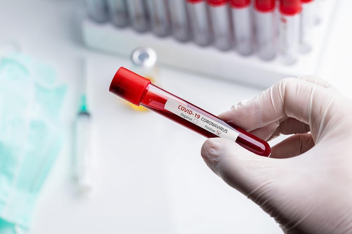 Bu gün 426 nəfər koronavirusa yoluxdu -  Statistika