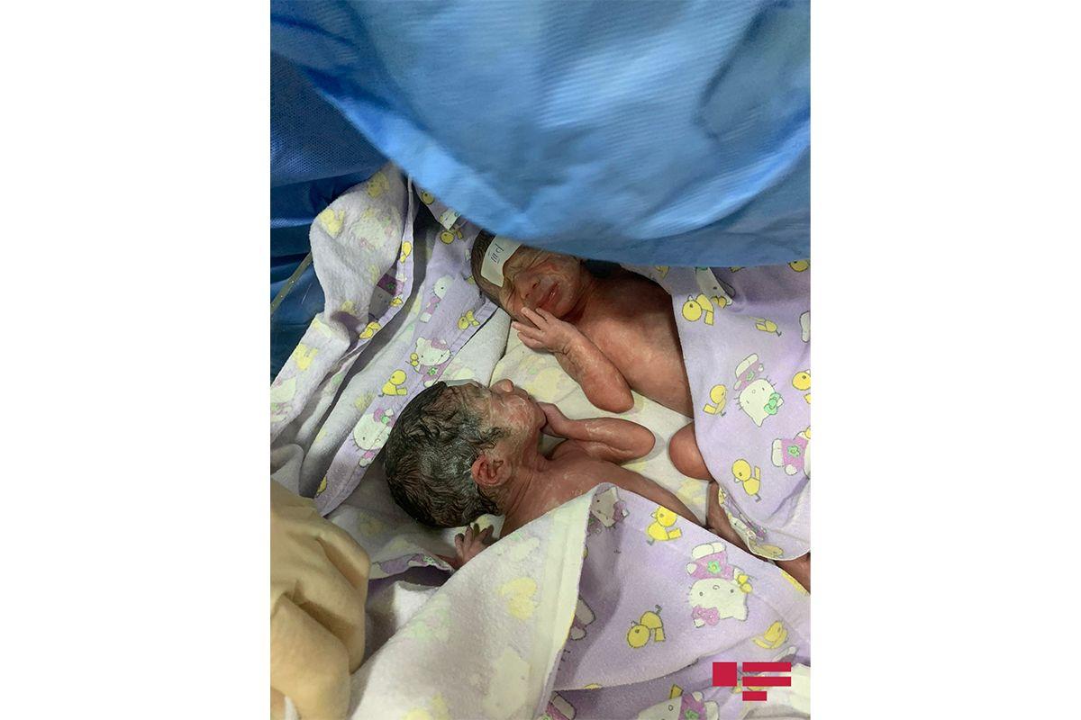 Bakıda dördəm doğuldu: 3-ü oğlan, 1-i qız -  FOTOLAR