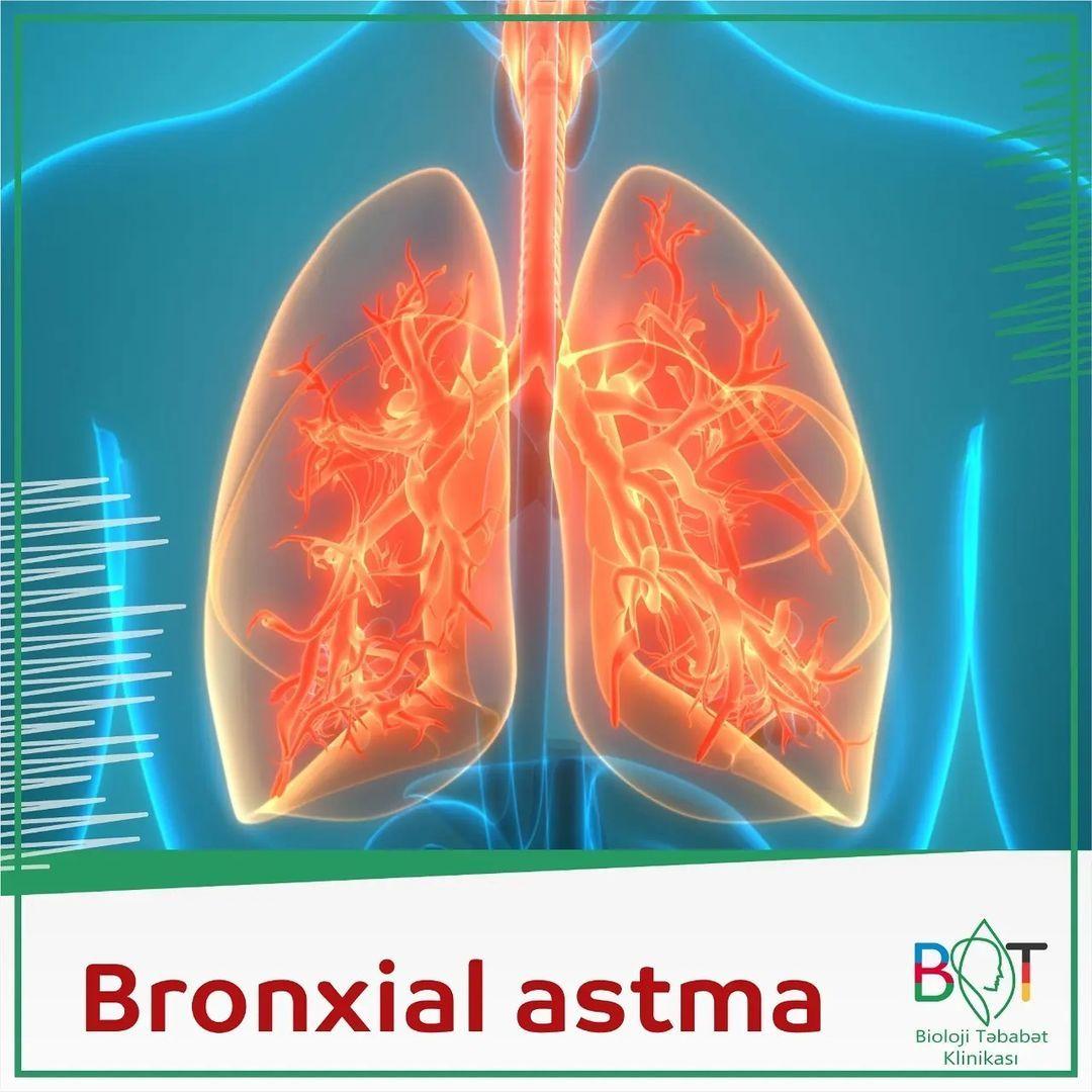 Bronxial astma necə və niyə yaranır?