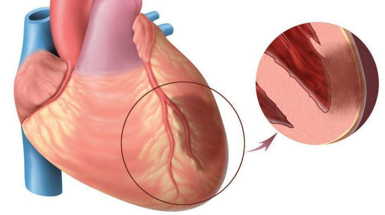 Ayaqüstü keçirilən infarkt -  Tromb damarda qopanda nə baş verir?