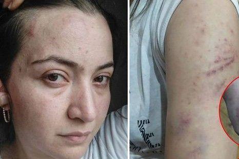 Polis əri tərəfindən öldürülən qadının  işgəncə fotoları