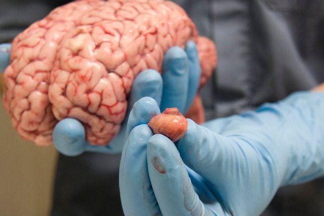 Beyin şişinin gizli əlaməti budur