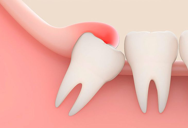 Ağıl dişinin sirri açıldı  – Hansı yaşda çıxır?