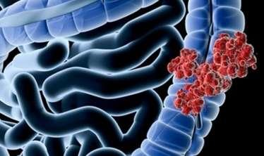 Tez-tez tutan qarın ağrısı xərçəng əlaməti ola bilər -  Onkoloq araşdırması