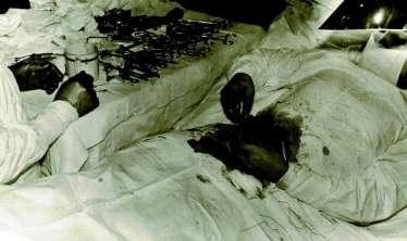 ÖZ APPENDİSİTİNİ ÖZÜ ÇIXARAN HƏKİM -  Əməliyyat Antarktikada olub
