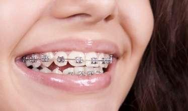 İnsanların 90 faizi diş əyriliyindən əziyyət çəkir -  Breket hansı yaşda, hansı dişlərə qoyula bilər...
