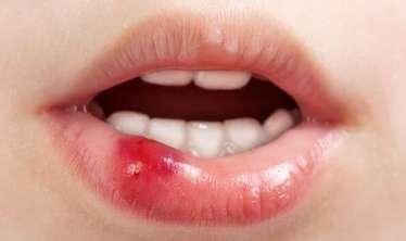 Oral seks ağız xərçənginə səbəb olur –  ALİMLƏR