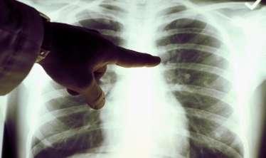 Öskürək yoxdur, amma pnevnoniya var  – Gizli pnevmoniyanın  ƏLAMƏTLƏRİ