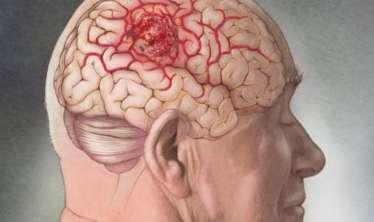 İmmunitet  beynin vəziyyəti və gücündən asılıdır  – Kimlər tez xəstələnir?
