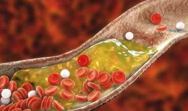 Hər gün yediyimiz bu qidalar damarlarımızı tıxayır -  VİDEO