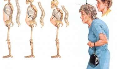 Osteoporozu ciddiyə alıb, qorunmaq lazımdır - Fərqli terapiya