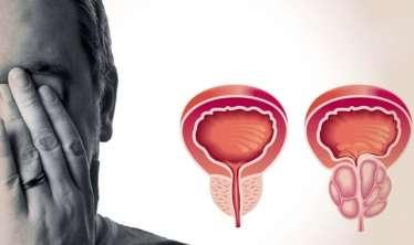 Prostatitin evdə müalicəsi üçün 5 türkəçarə  - Sınanmış RESEPTLƏR - VİDEO