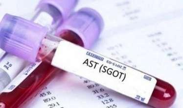 Qaraciyərinizi bu analizlərlə yoxladın   - Qanda ALT, AST nədir?