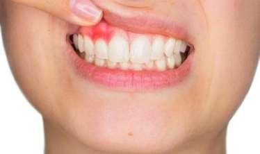 Əksik dişlərlə nə qədər   yaşaya bilərik?