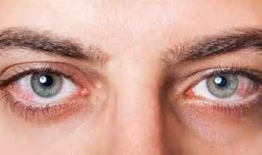 Koronavirusun gözlərdə əlaməti