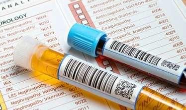 Sidik turşusu: ürək –damar xəstəliklərinin səbəbidir  – Necə normada saxlamalı