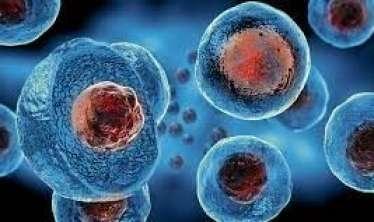 Qanda xolesterolun artması xərçəng şişlərini   OYADIR