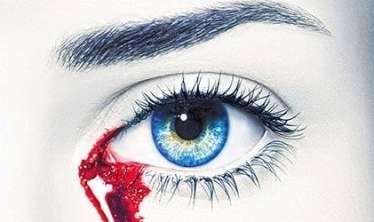 25 yaşlı qız qanlı göz yaşları ilə ağlayır  – Unikal hadisə