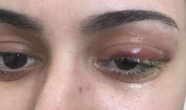Bakıda özəl klinikada MRT aparatının içində qızın  gözü zədələndi – ŞİKAYƏT-FOTOLAR