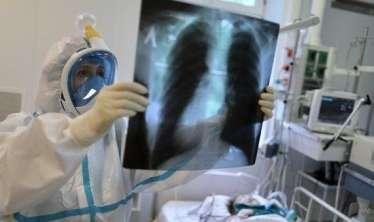 Ağciyərlər 50% tutulub, amma oksigen saturasiyası normaldır -  Koronavirusun qəribəliyi