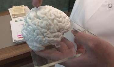 Türkiyədə printerlə insan beyni hazırlandı