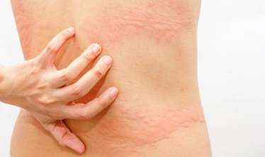 Əgər bədəndə ağrılar kəsmirsə, bu adi herpes ola bilər -  İnfarktla səhv salınan xəstəlik