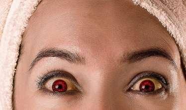 Gözlərin bərəlməsi hansı xəstəliyin əlamətidir -  Endokrinoloqdan AÇIQLAMA