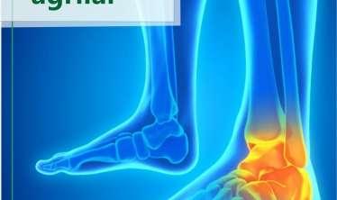 Ayaqlarda ağrıların 10 səbəbi